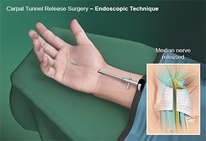 Endoscopic Carpal Tunnel Surgery