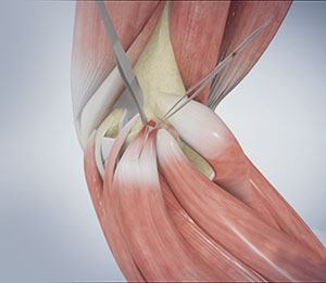 Elbow Impingement